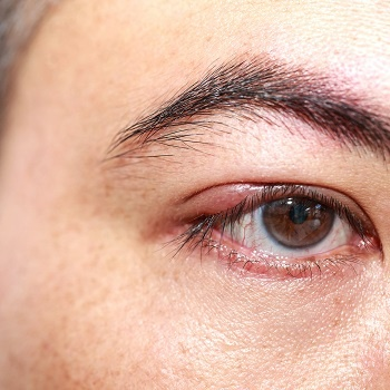 An abscess on the eyelid