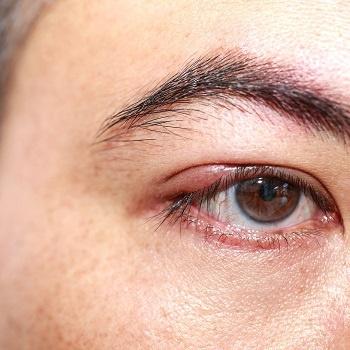 An abscess on the eyelid