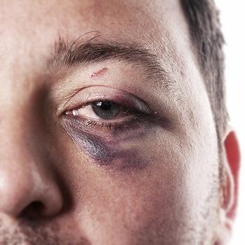 Man with black eye