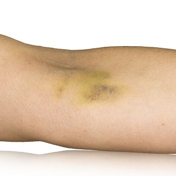 Yellow bruise