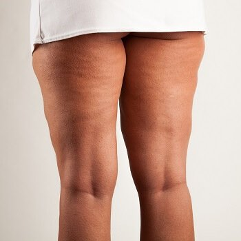 Woman suffering from cellulitis