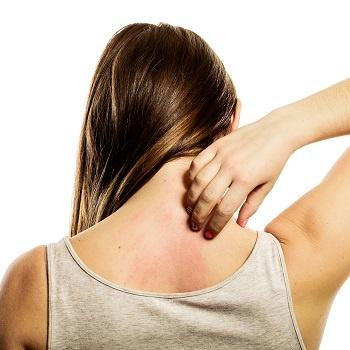 Dry skin on a back