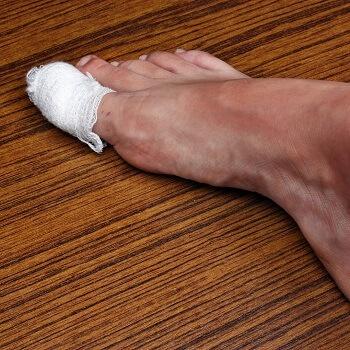 Bandage covering an ingrown toenail