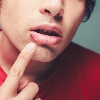 Young guy with a cold sore