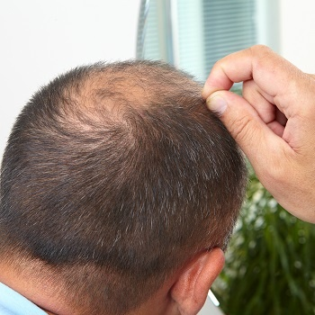 Thinning hair is a symptom of male pattern baldness