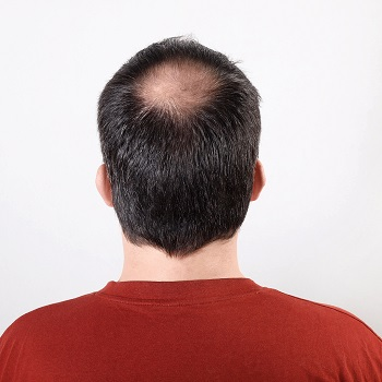 A bald spot on the crown of the head is one of the main signs of male pattern baldness