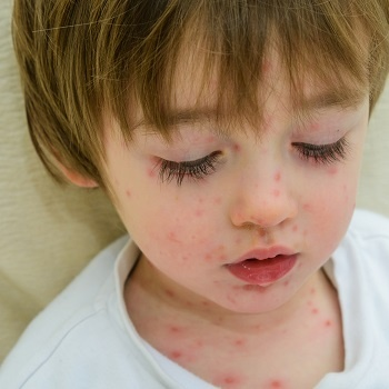 Visit Push Doctor if your child develops a rash