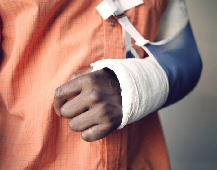 broken-arm-healing