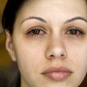 conjunctivitis symptoms