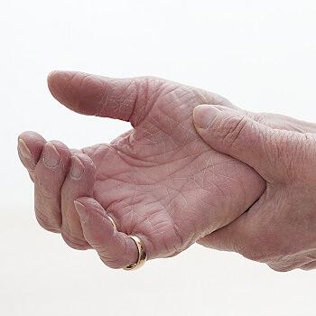 Pain relief for arthritis