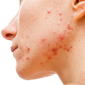 Acne spots on the skin