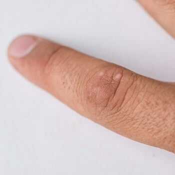 Warts on a finger