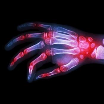 X-ray of hand with rheumatoid arthritis