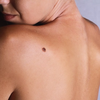 Prolongled exposure to sunlight can cause Melanoma