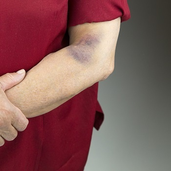 Large bruise on an arm