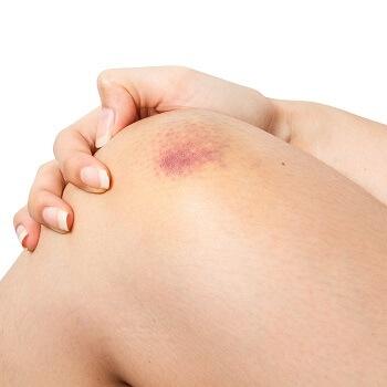 A bruised knee
