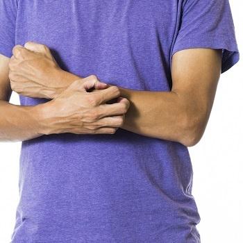 Man scratching dry skin
