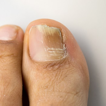 Fungal Nail Infection