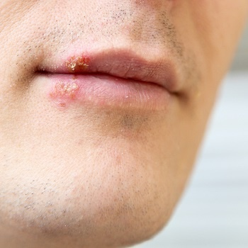 Cold sore caused by herpes