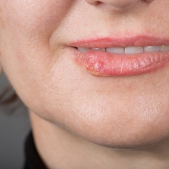 A woman with a cold sore