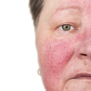 A woman suffering from rosacea