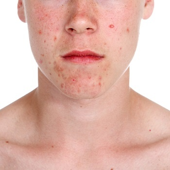 Spots and redness are some of the symptoms of rosacea