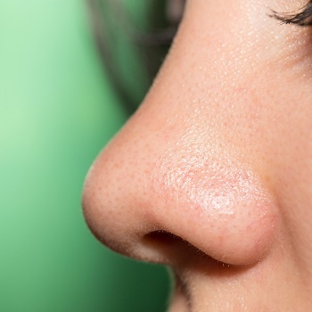 Rosacea can affect the nose if left untreated