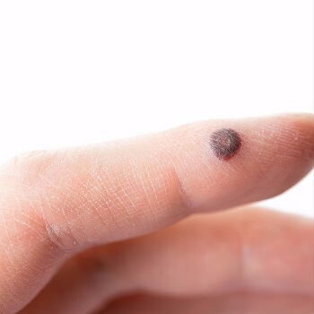A wart causing a lump on the skin