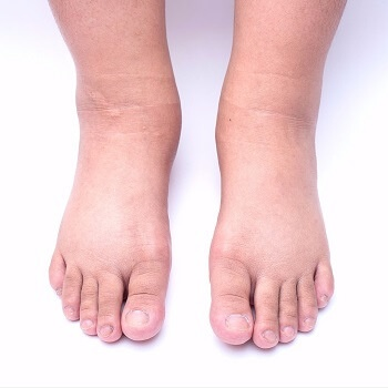 swelling in feet