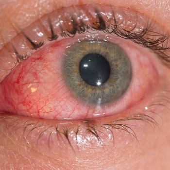 close up conjunctivitis